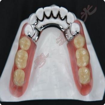 口腔义齿激光焊接修复